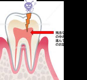 虫歯 神経