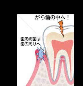虫歯 歯周病