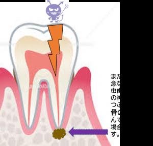 虫歯 進行 顎骨