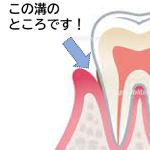 歯頚部 ブラッシング