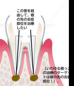 根の膿の治療